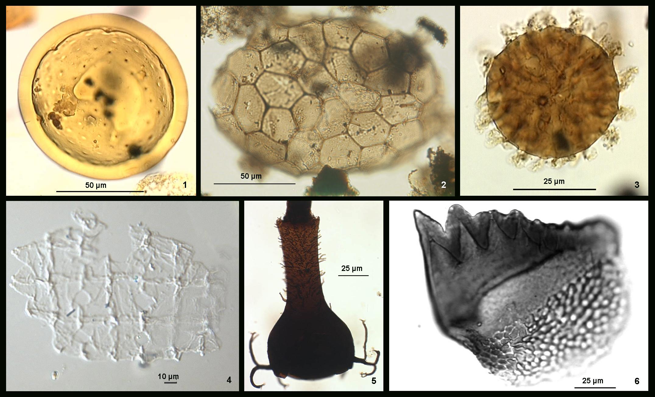 Palynologie - Aquatische Palynomorphen